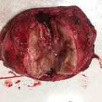Der Tumor von Grace wog 400 Gramm
